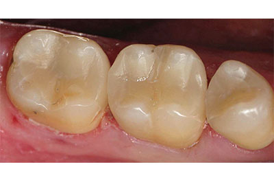 Multiple cerec restorations after