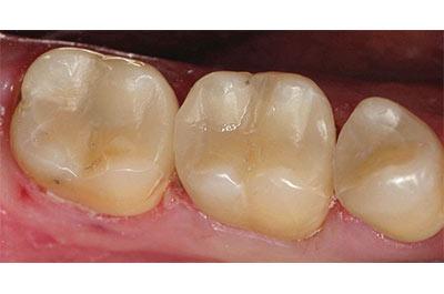 Multiple cerec restorations after