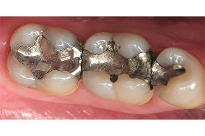 Multiple cerec restorations before