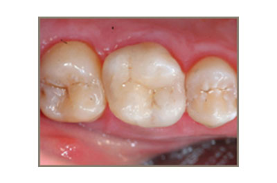 After Cerec Restoration