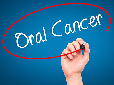 Oral cancer visual