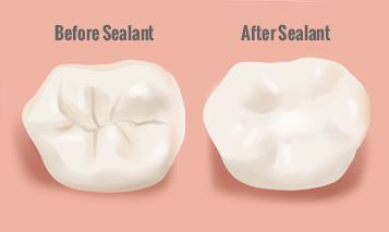 Before After Sealants