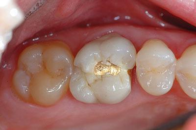 Before (Broken Tooth)